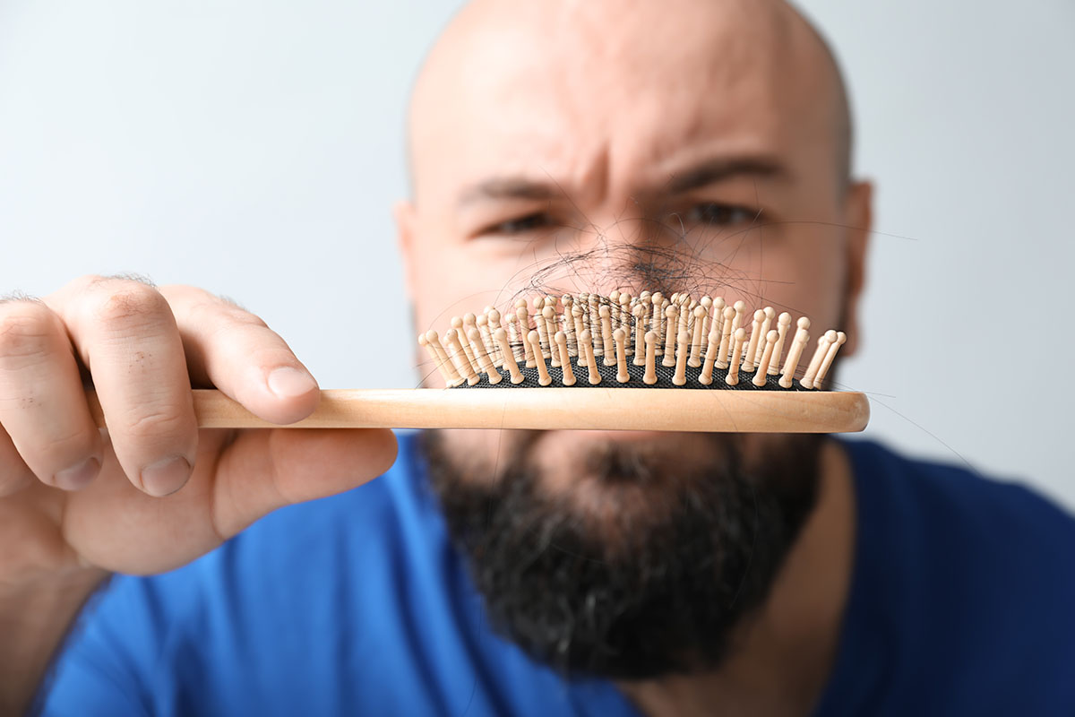 How Can You Tell if You Need an FUE Hair Transplant? [Take the Quiz]