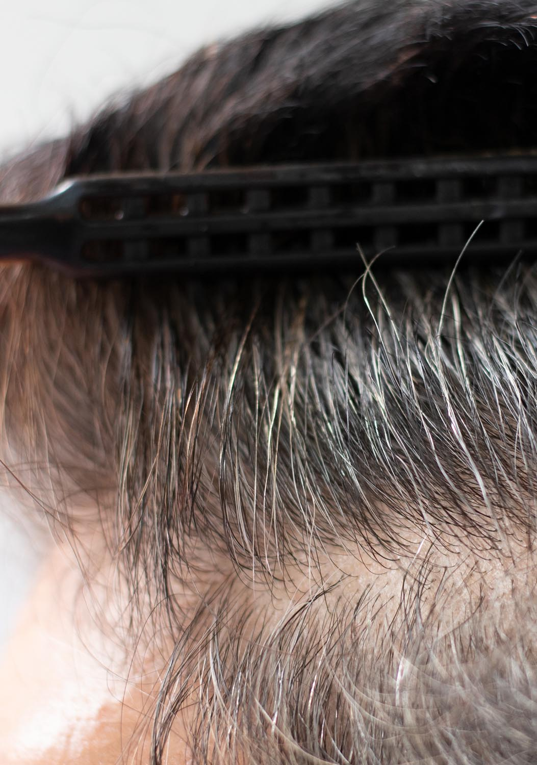 Scarless Hair Restoration - FUE Toronto