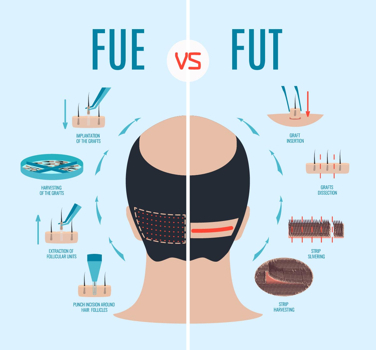 FUE vs. FUT - Hair Transplant Methods
