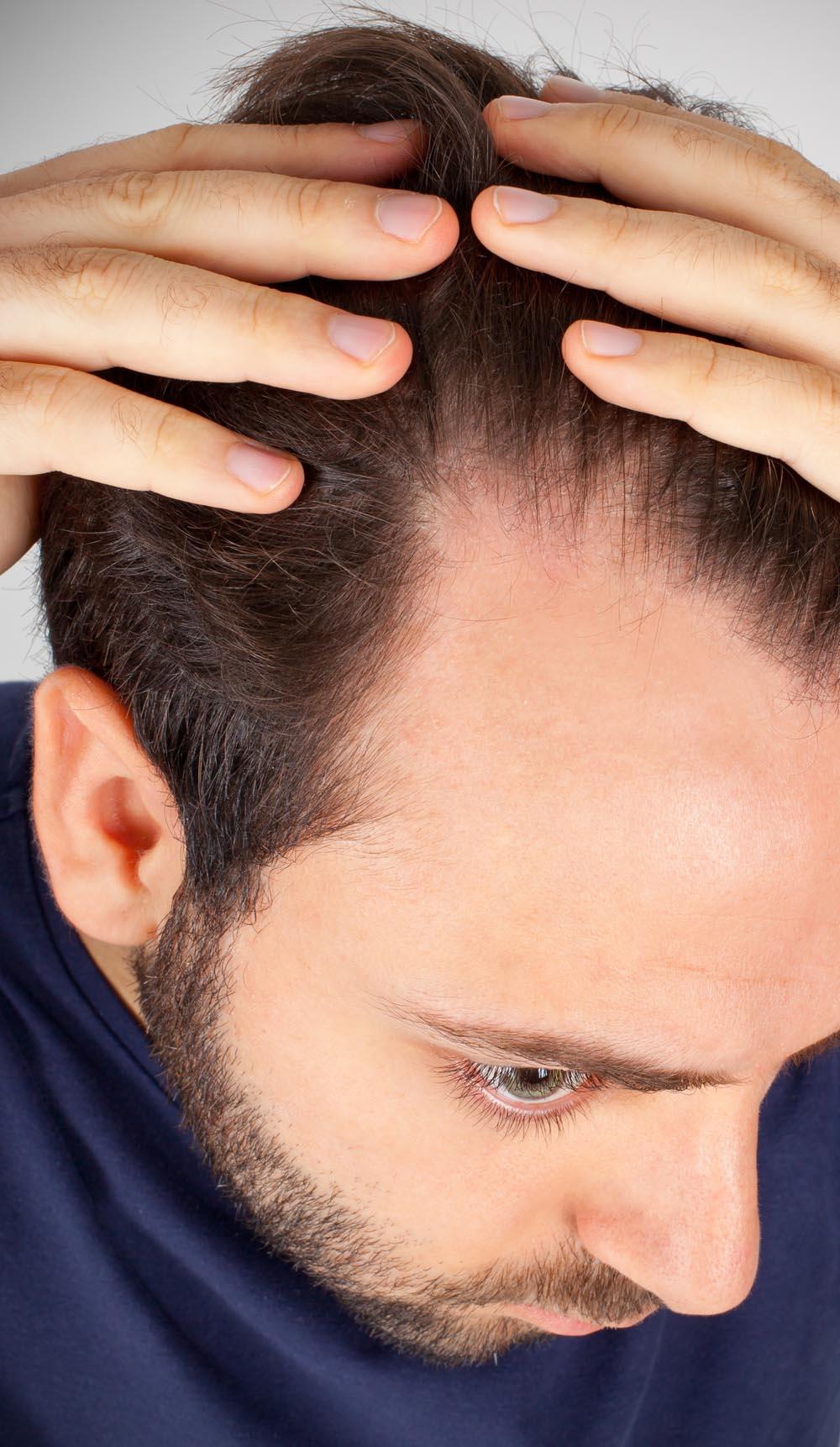 FUE Hair Transplant - Lowering Hairline