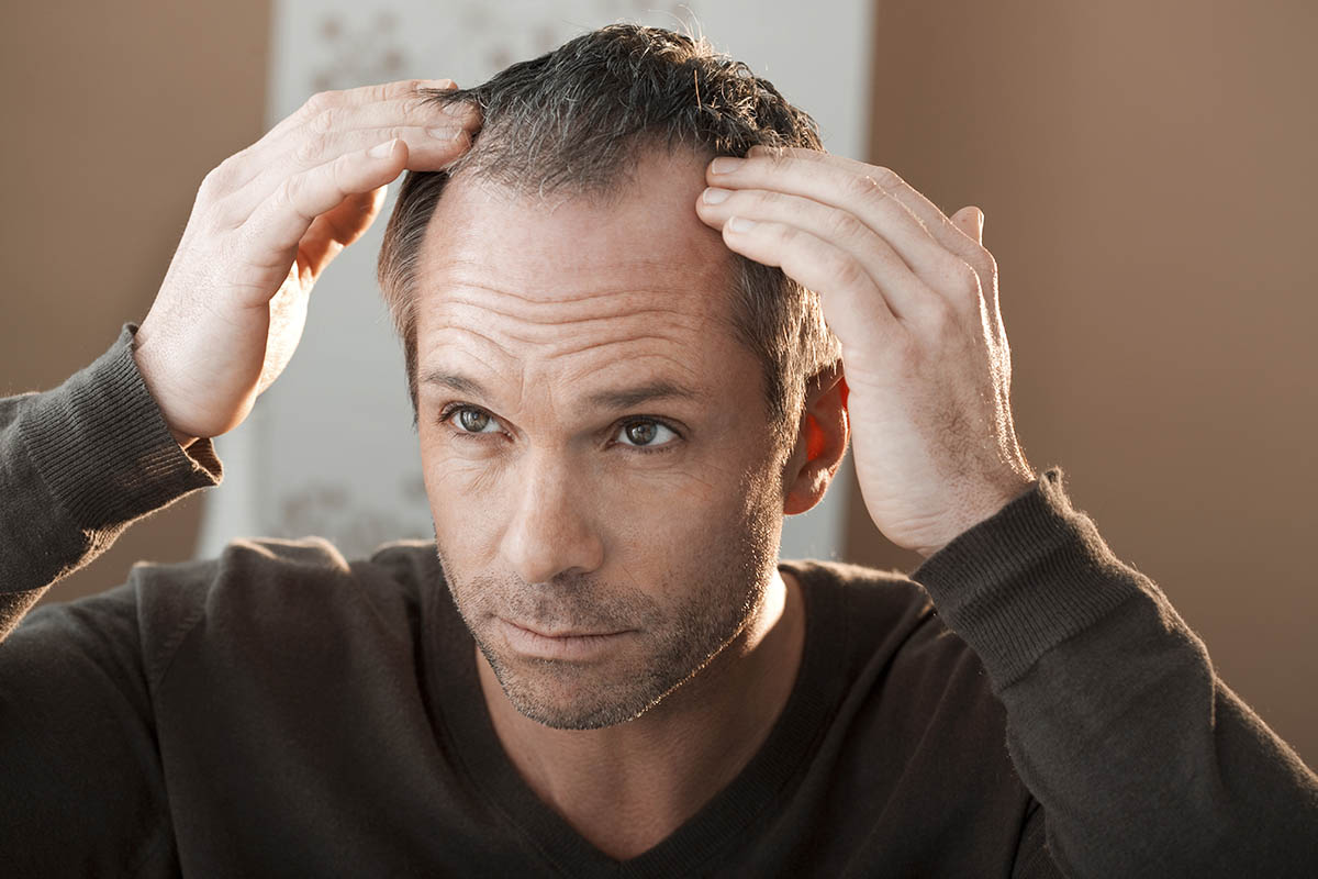 FUE Hair Transplants Plus 9 Other Ways to Combat Baldness