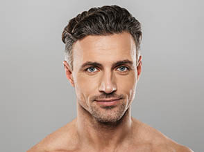 Neograft Facial Hair Transplants