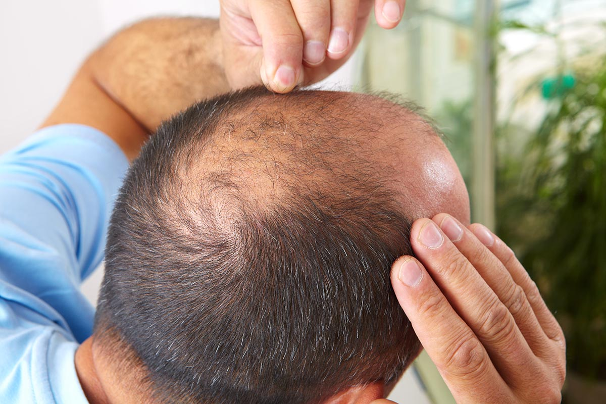 Hair Transplant — Toronto's Costs and What's Included