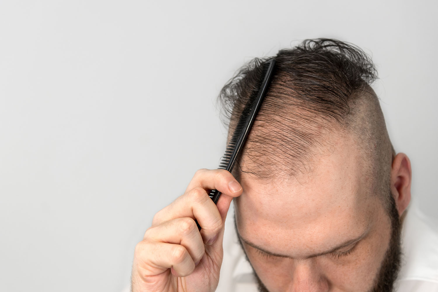 Hair Thinning in Toronto? Find Out How Your Hair Loss Cure Measures Up