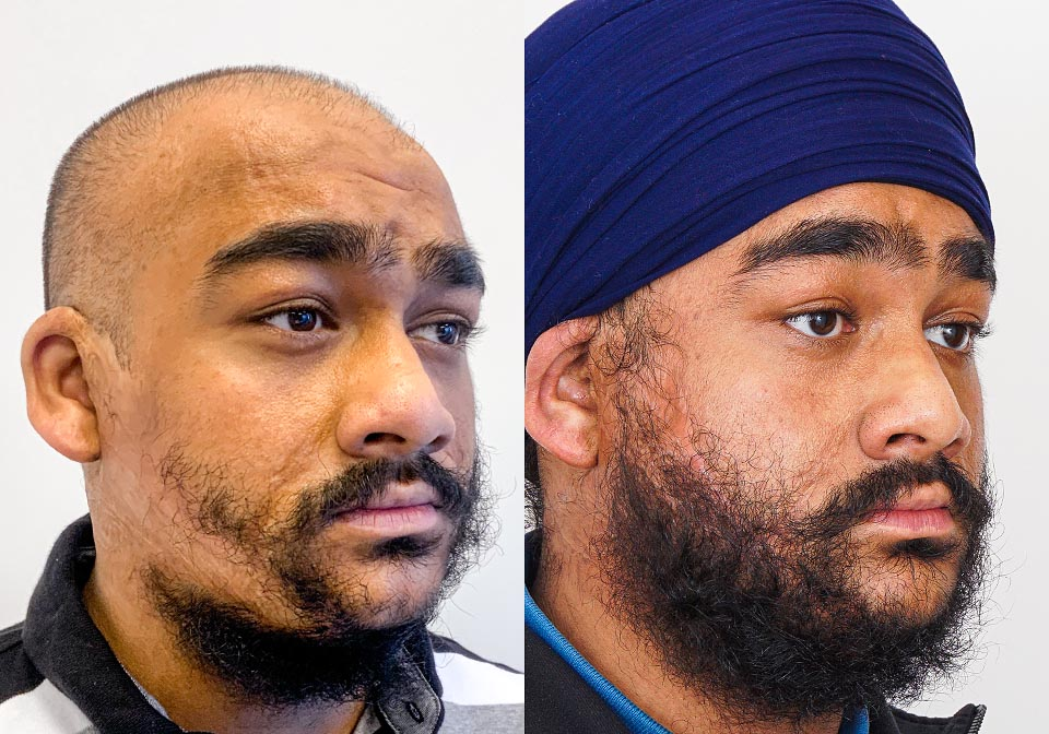 Beard Transplant Toronto