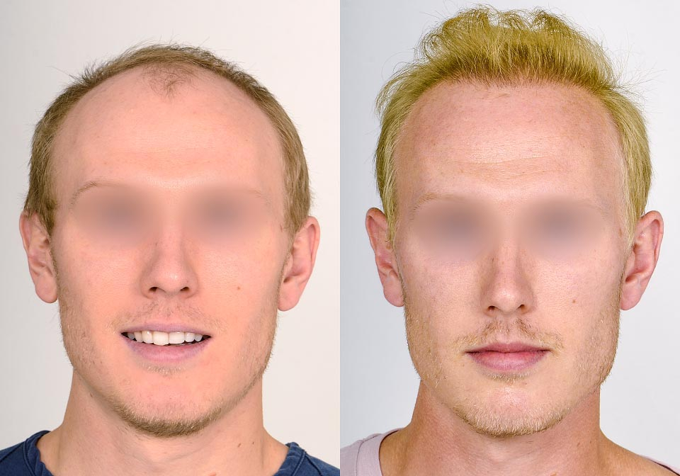 FUE Toronto Before & After (5)