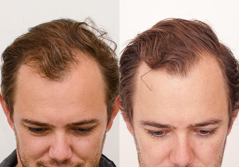 PRP Hair Treatment Toronto