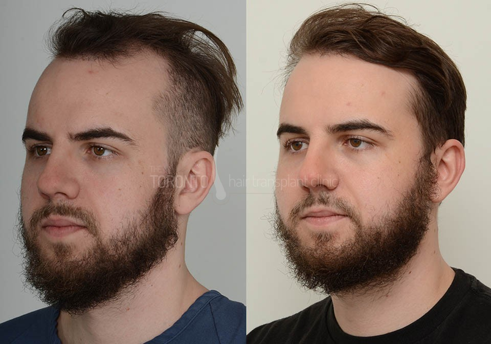 FUE-Hair-Transplant-Before-After-P1 (1)