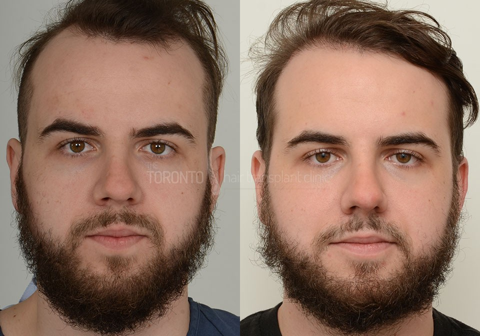 FUE-Hair-Transplant-Before-After-P1 (2)