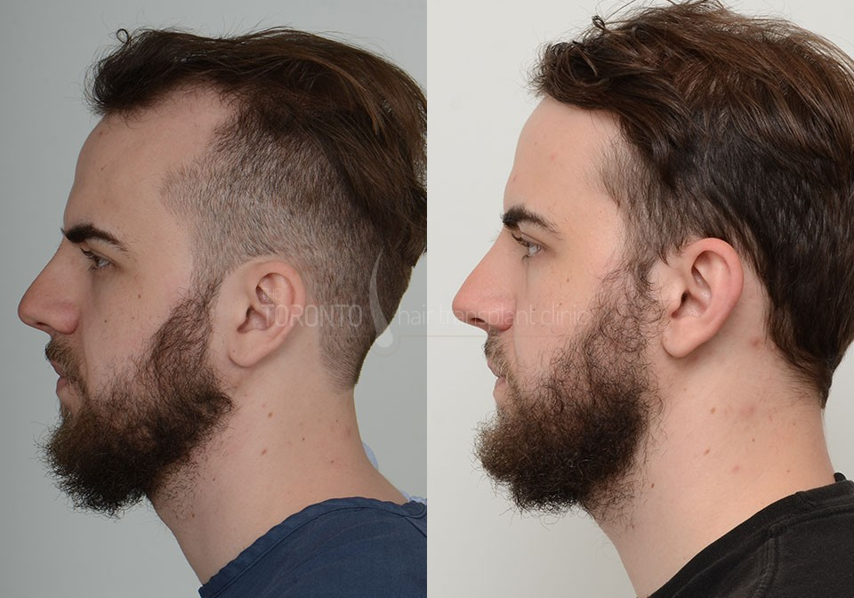 FUE-Hair-Transplant-Before-After-P1 (3)