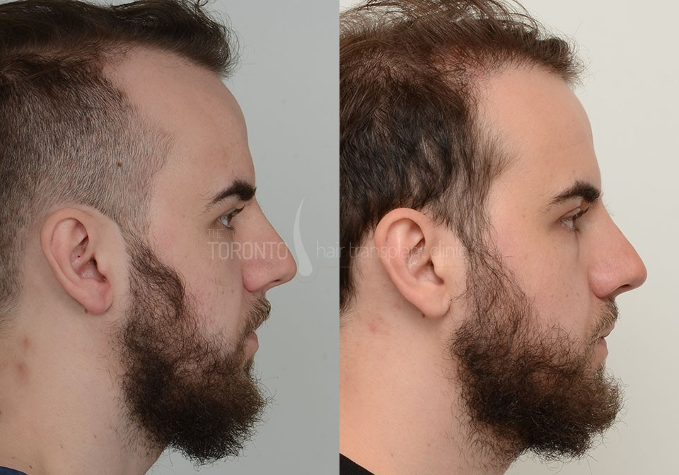 FUE-Hair-Transplant-Before-After-P1 (4)