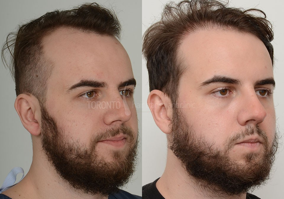 FUE-Hair-Transplant-Before-After-P1 (5)