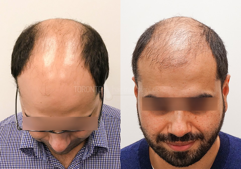 FUE-Hair-Transplant-Before-After-P10 (1)