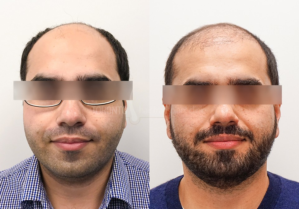FUE-Hair-Transplant-Before-After-P10 (2)