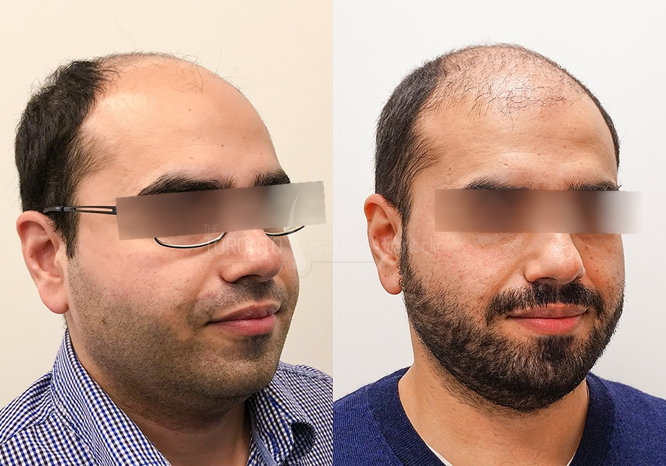 FUE-Hair-Transplant-Before-After-P10 (3)