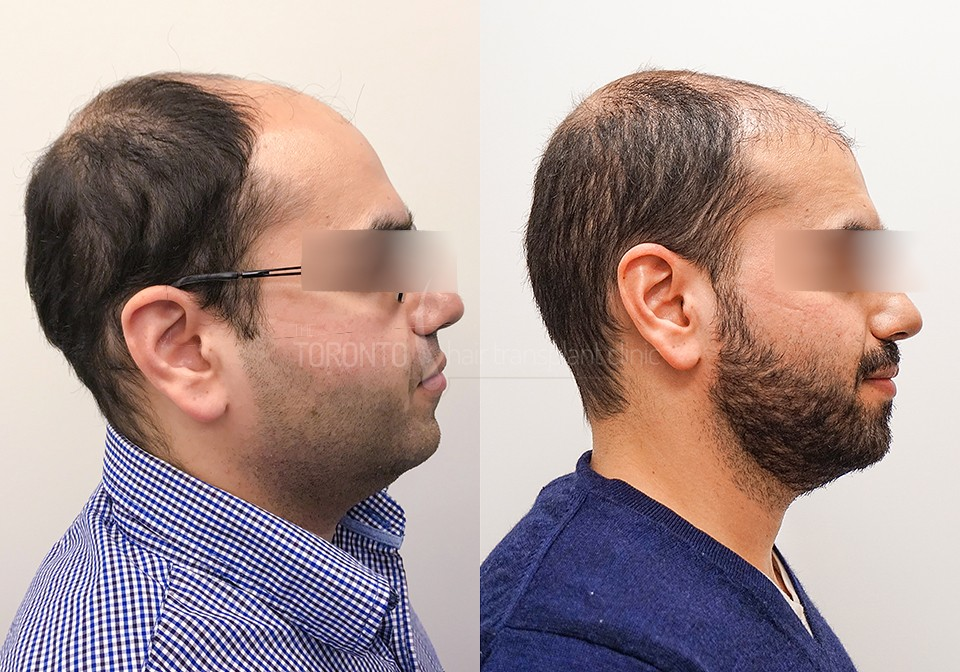 FUE-Hair-Transplant-Before-After-P10 (4)