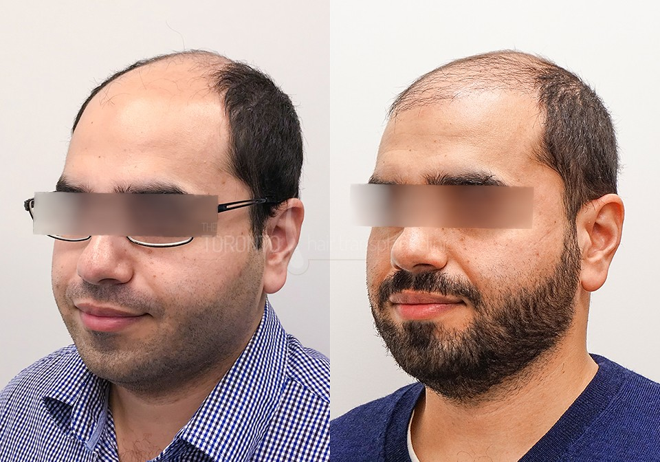 FUE-Hair-Transplant-Before-After-P10 (5)
