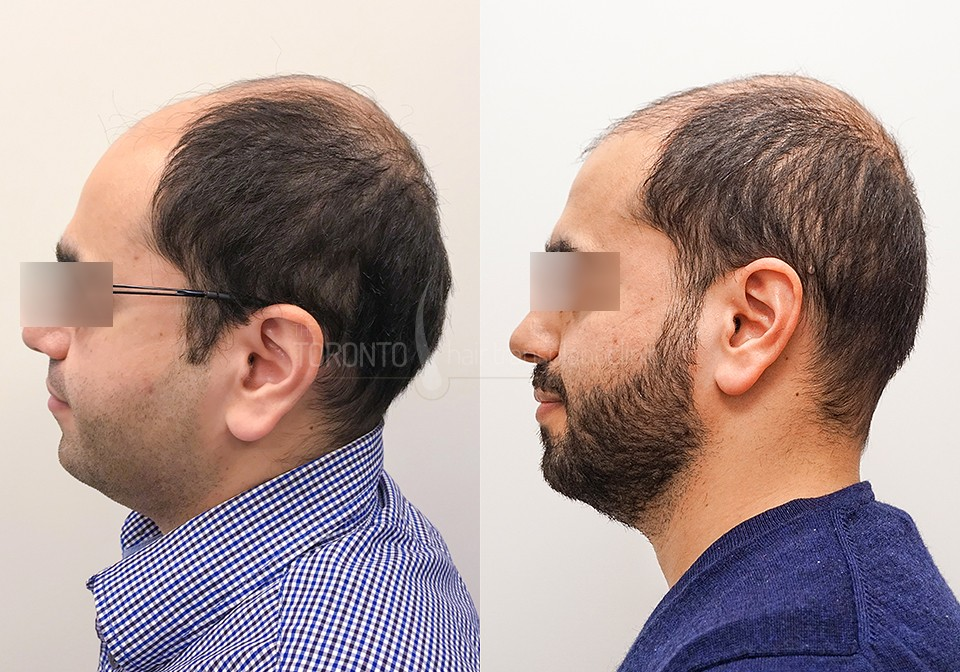 FUE-Hair-Transplant-Before-After-P10 (6)