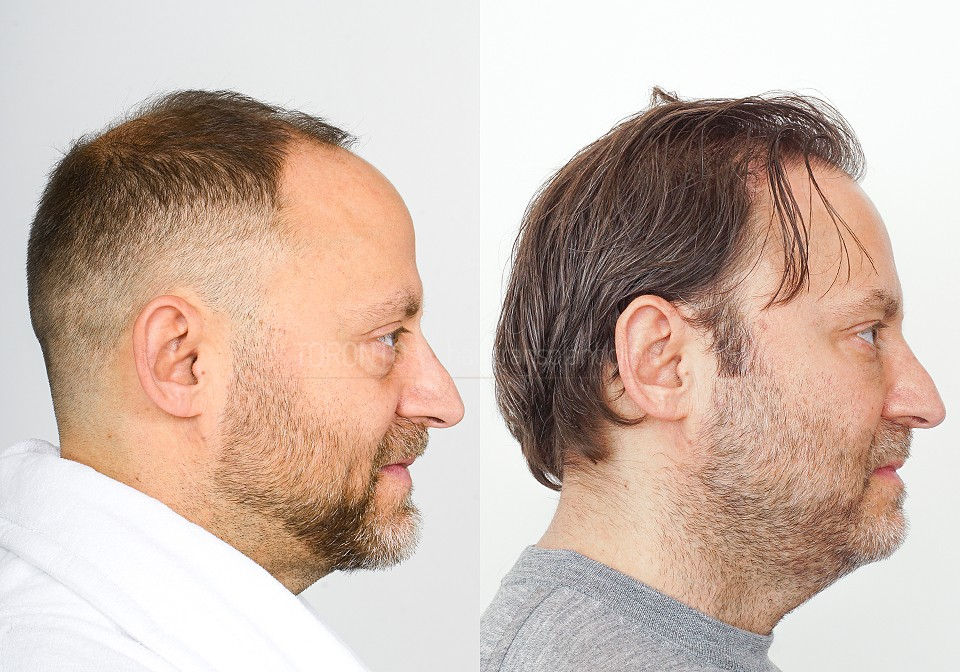 FUE-Hair-Transplant-Before-After-P11 (1)