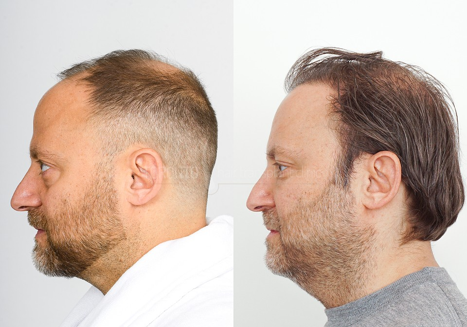 FUE-Hair-Transplant-Before-After-P11 (2)