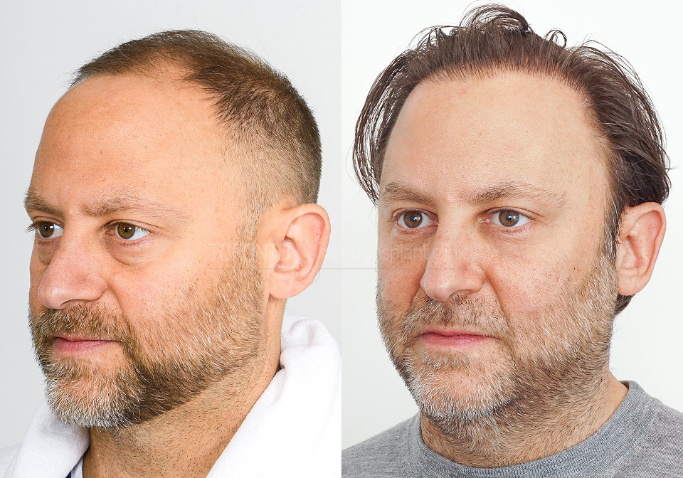 FUE-Hair-Transplant-Before-After-P11 (3)