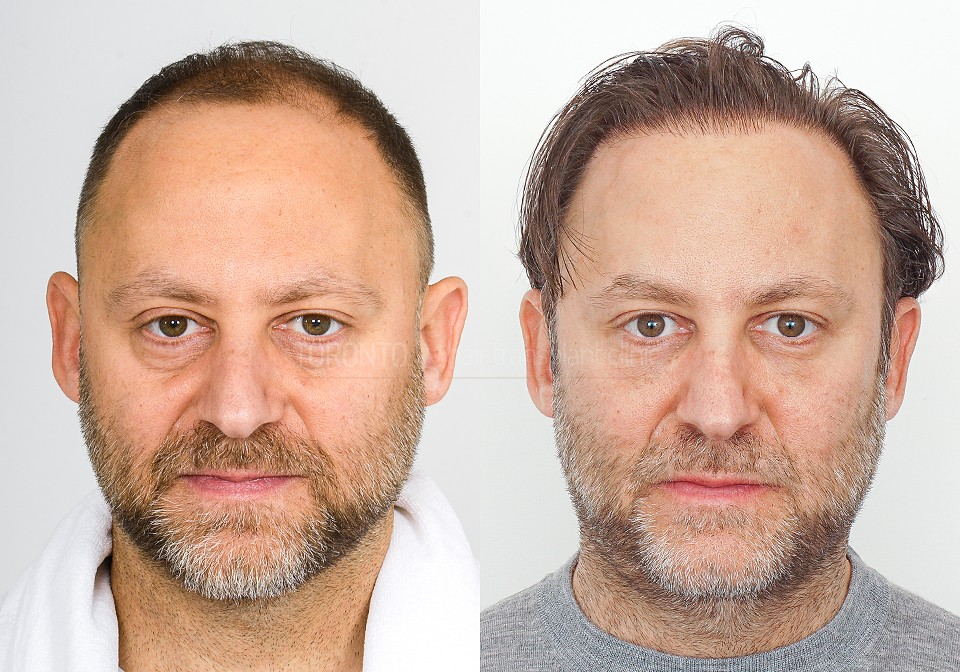 FUE-Hair-Transplant-Before-After-P11 (4)