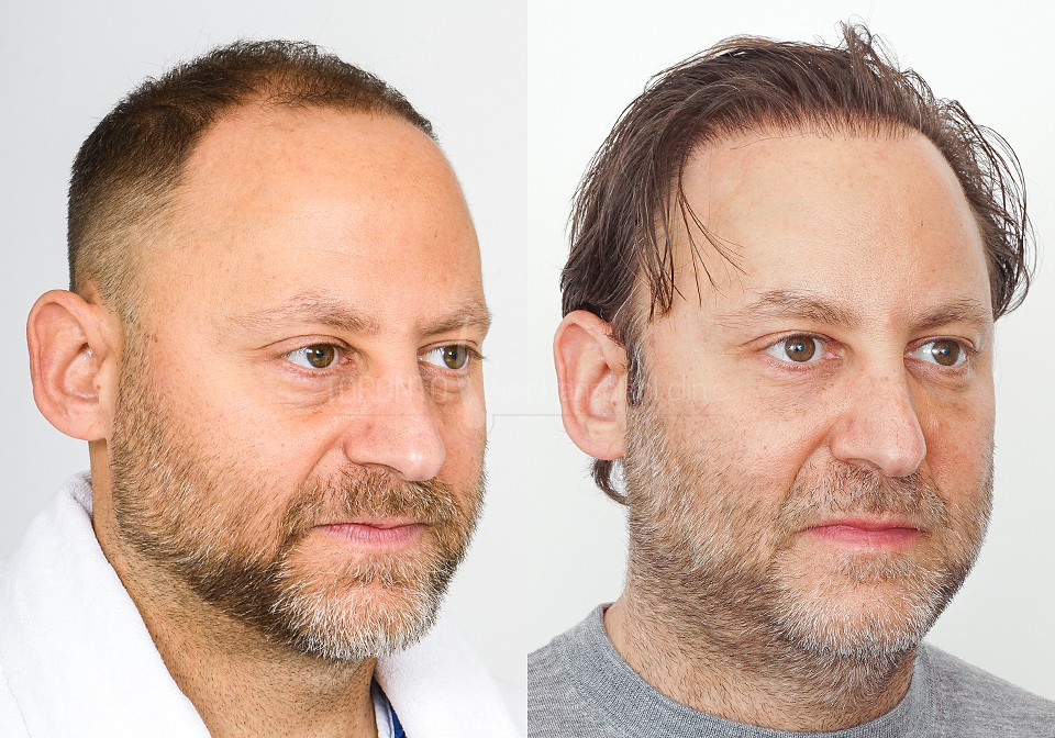 FUE-Hair-Transplant-Before-After-P11 (5)