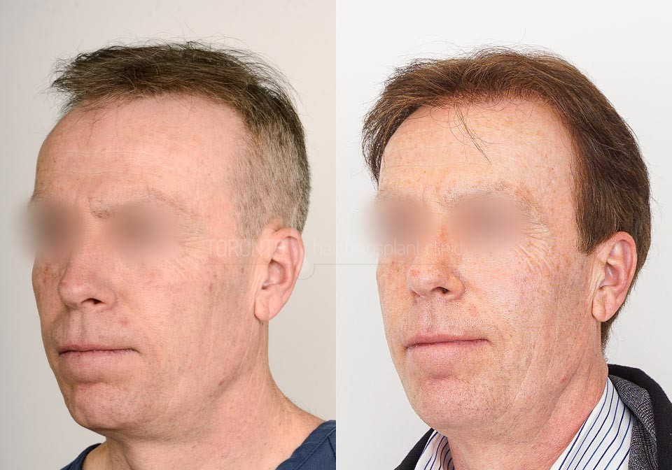 FUE-Hair-Transplant-Before-After-P12 (1)