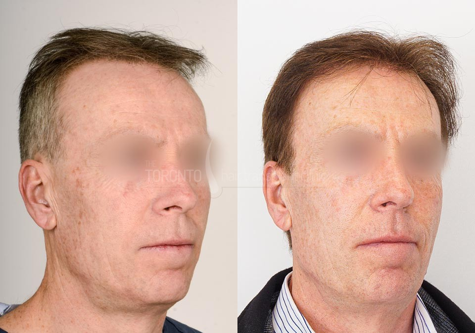 FUE-Hair-Transplant-Before-After-P12 (2)