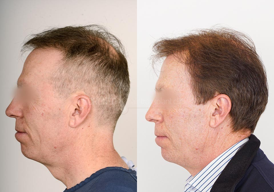 FUE-Hair-Transplant-Before-After-P12 (4)