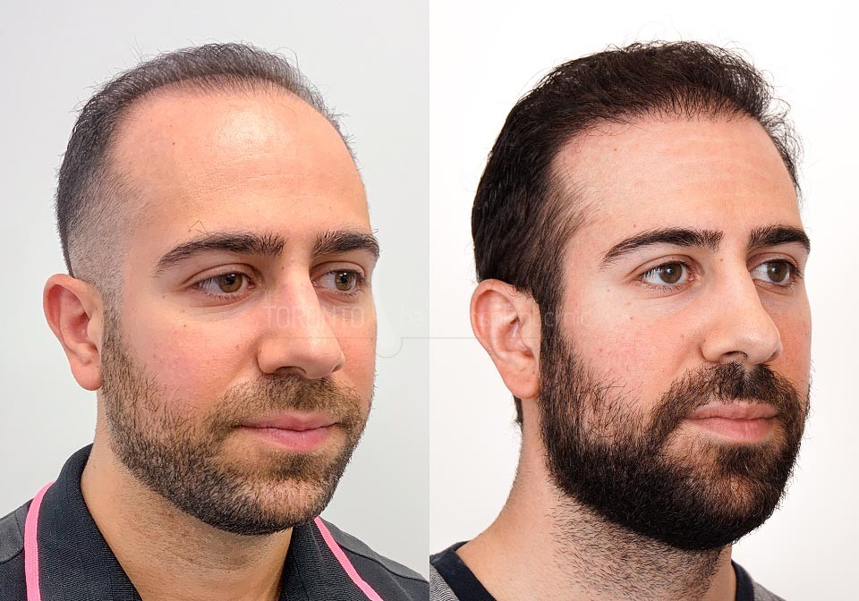FUE-Hair-Transplant-Before-After-P13 (1)