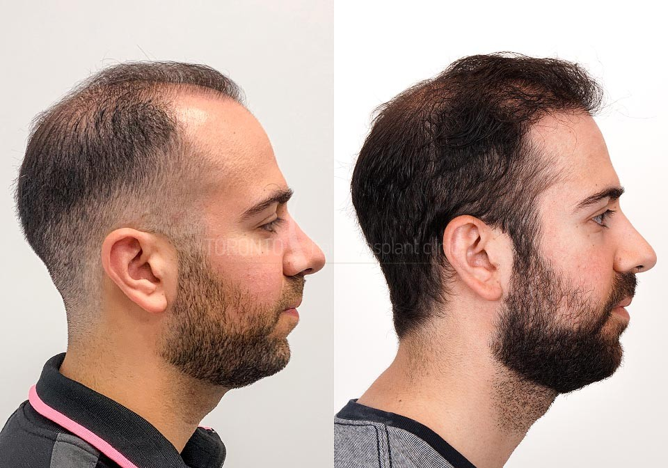 FUE-Hair-Transplant-Before-After-P13 (2)