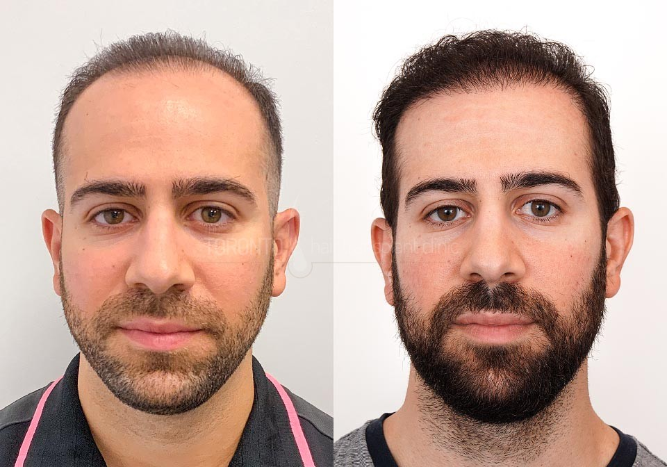 FUE-Hair-Transplant-Before-After-P13 (3)