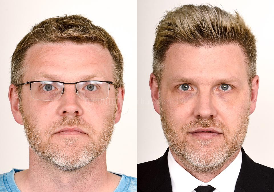 FUE-Hair-Transplant-Before-After-P14 (1)