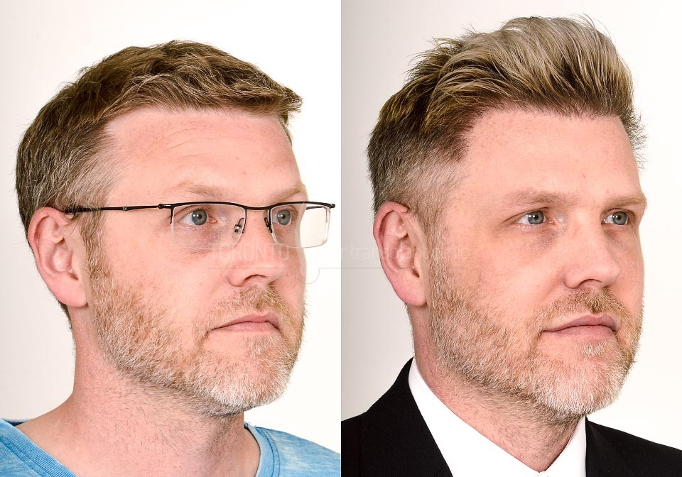 FUE-Hair-Transplant-Before-After-P14 (2)