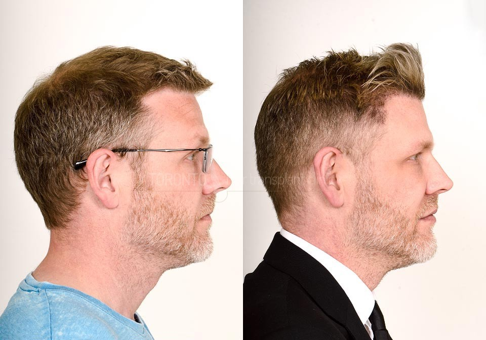 FUE-Hair-Transplant-Before-After-P14 (3)