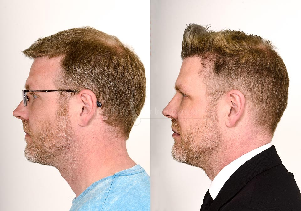 FUE-Hair-Transplant-Before-After-P14 (4)