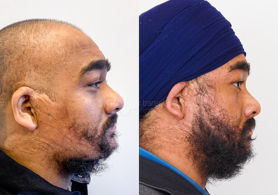 FUE-Hair-Transplant-Before-After-P15 (1)