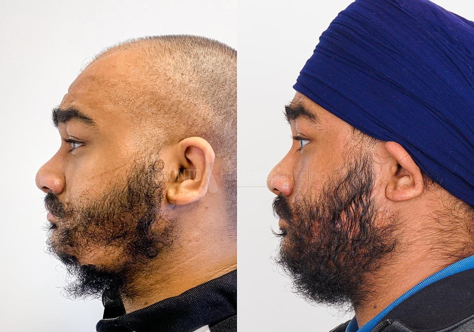 FUE-Hair-Transplant-Before-After-P15 (2)