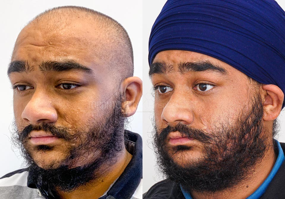 FUE-Hair-Transplant-Before-After-P15 (3)