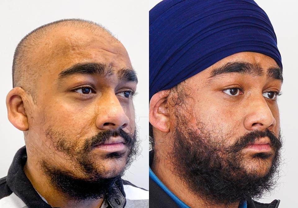 FUE-Hair-Transplant-Before-After-P15 (5)