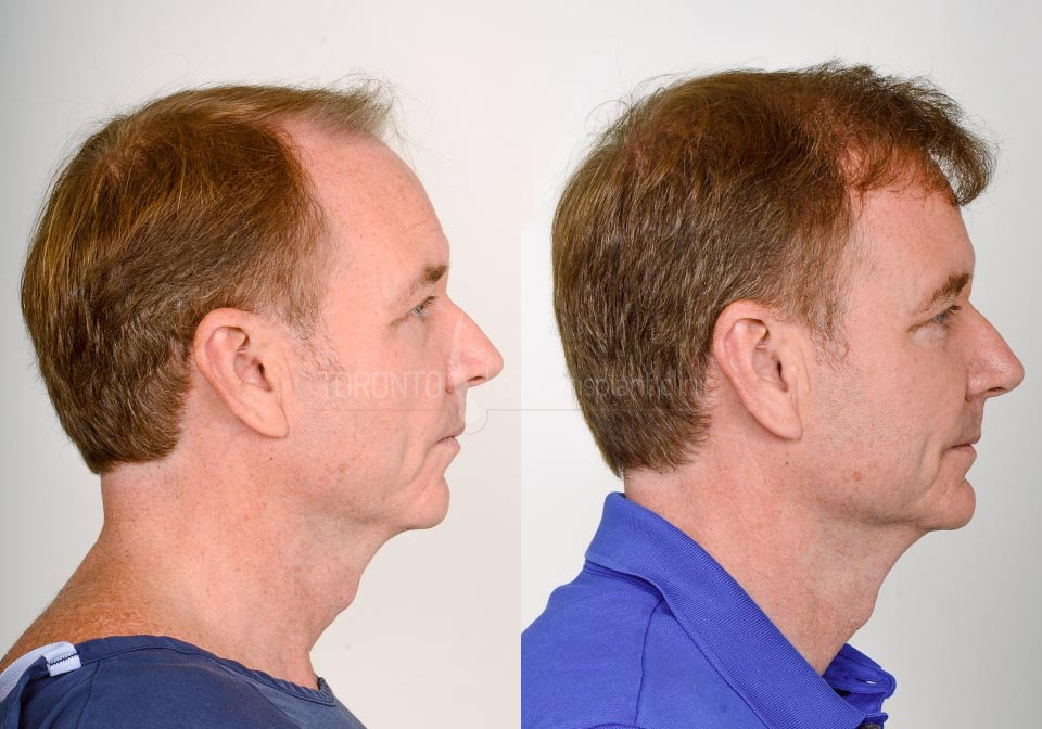 FUE-Hair-Transplant-Before-After-P16 (1)