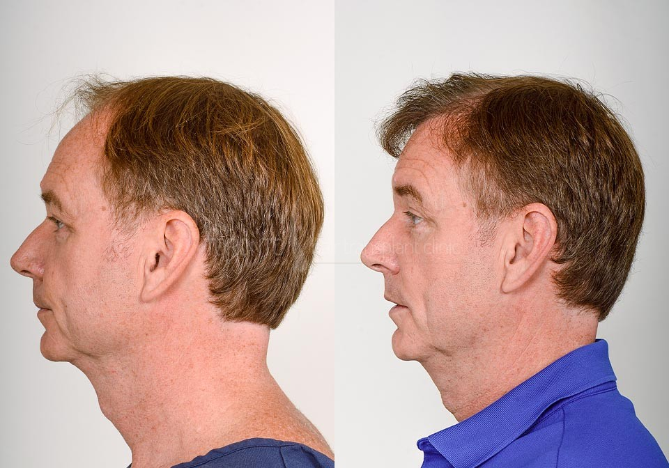 FUE-Hair-Transplant-Before-After-P16 (2)