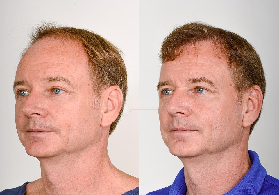 FUE-Hair-Transplant-Before-After-P16 (3)