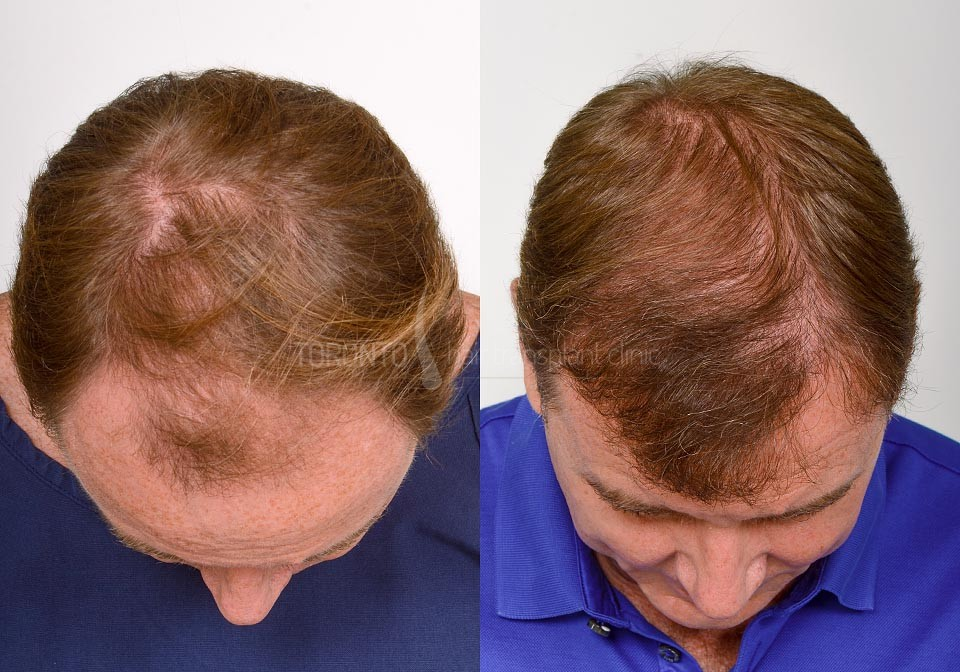 FUE-Hair-Transplant-Before-After-P16 (4)