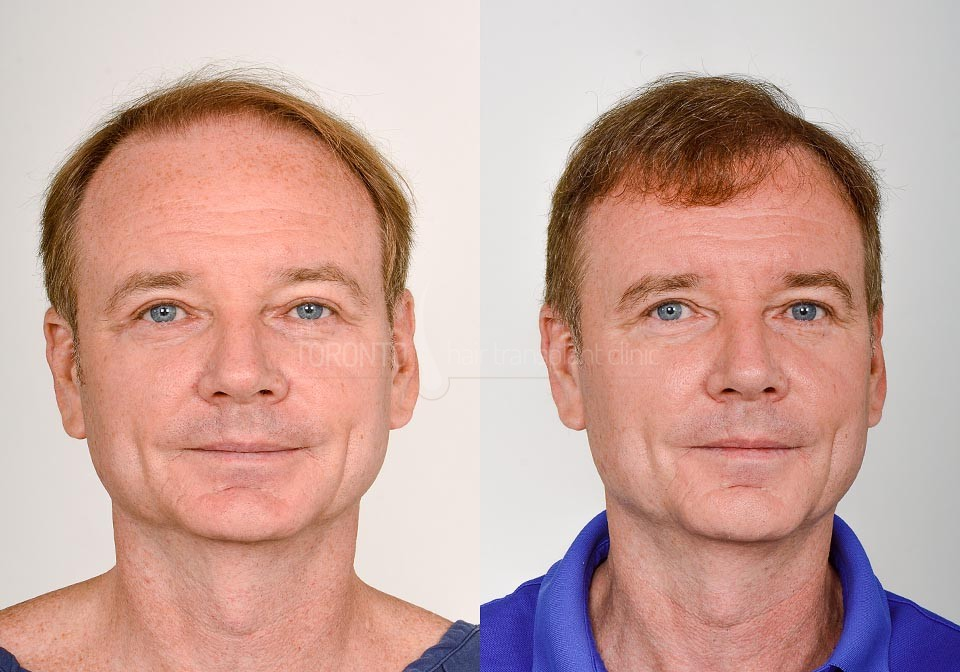 FUE-Hair-Transplant-Before-After-P16 (5)