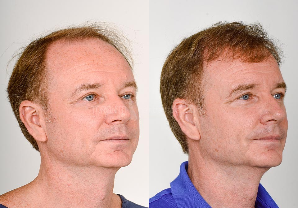 FUE-Hair-Transplant-Before-After-P16 (6)