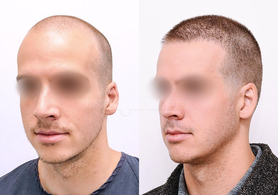 FUE-Hair-Transplant-Before-After-P17 (1)