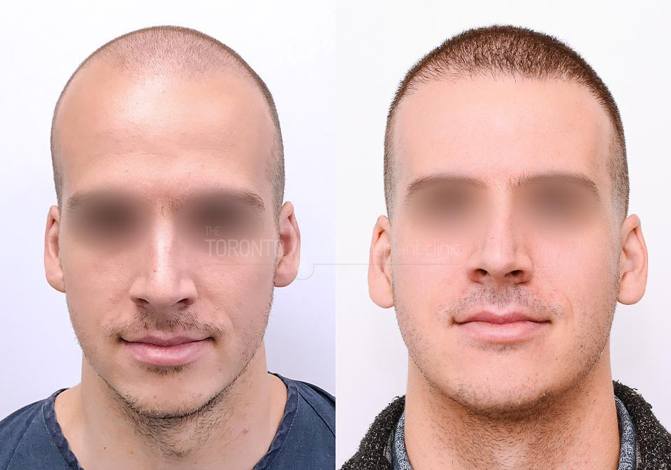 FUE-Hair-Transplant-Before-After-P17 (2)