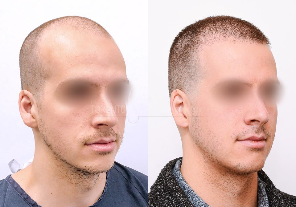 FUE-Hair-Transplant-Before-After-P17 (3)